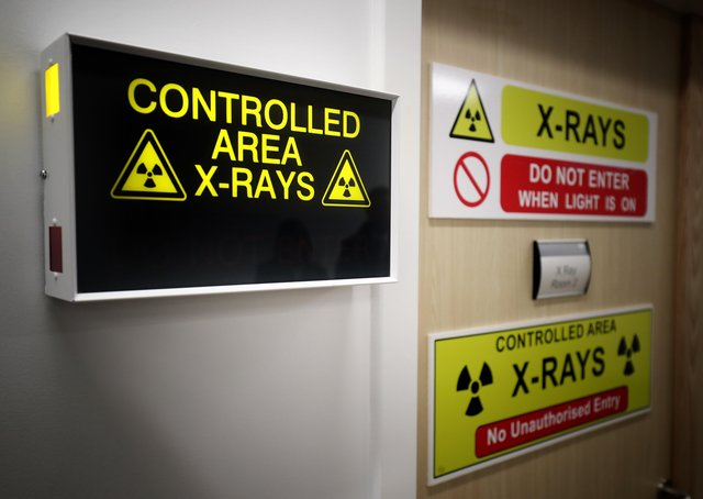 The number of scans used to diagnose cancer dropped by 11% as the coronavirus pandemic hit hospital services at Peterborough and Stamford Hospitals. Photo: PA EMN-210605-144501001